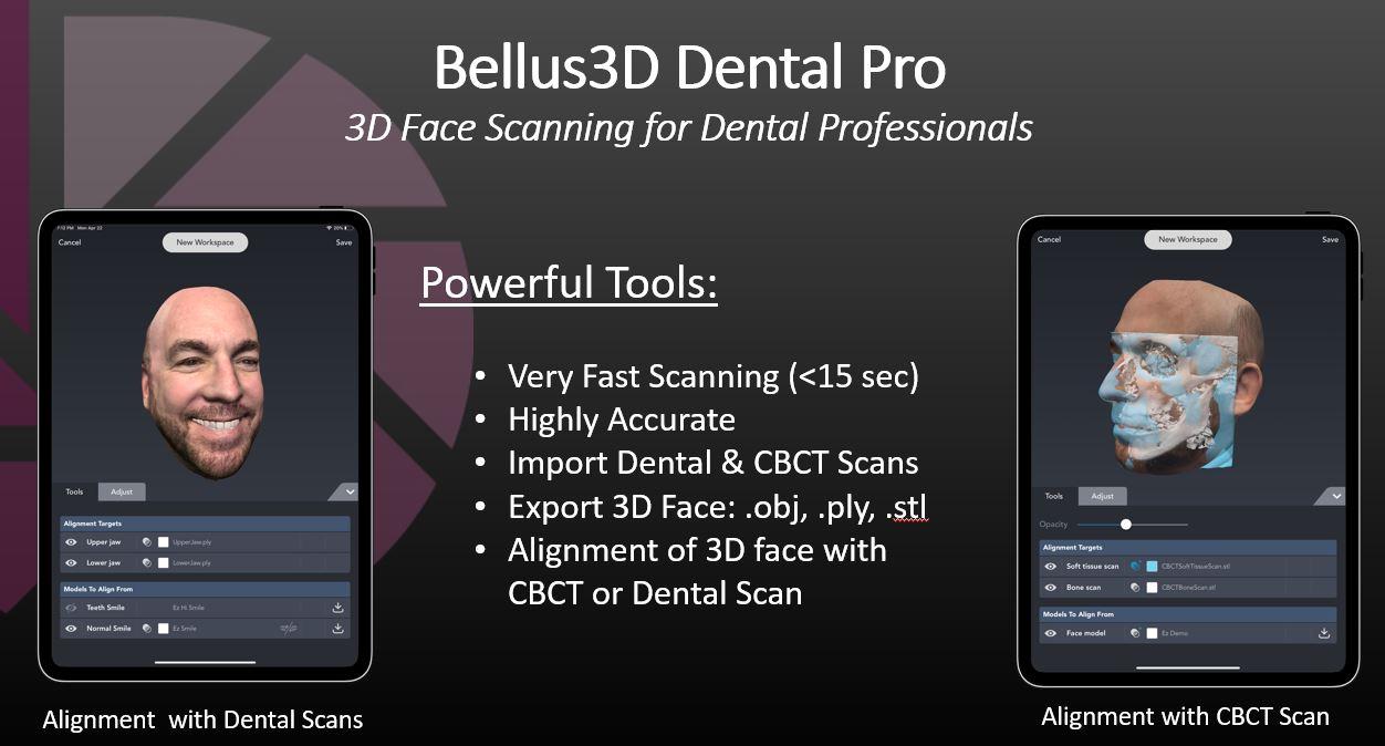 Bellus | Digiflow3D